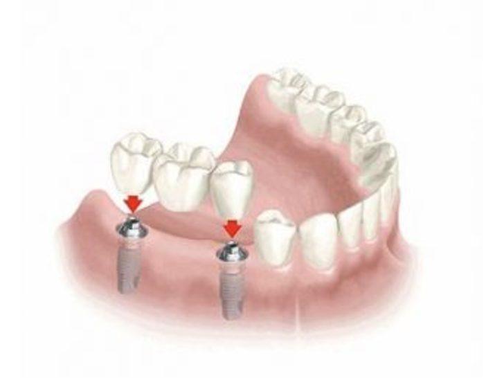Eksik Dişler İçin Yeni Tedavi Yöntemi