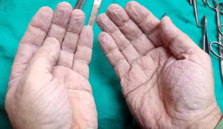 Ameliyat sonrası ellerini paylaşan doktor sosyal medyayı salladı