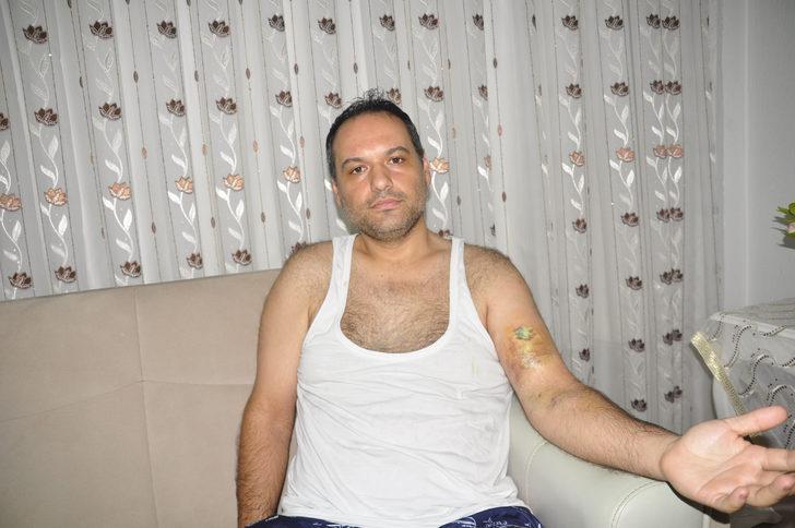 Tartıştığı hasta bakıcı kolunu ısırdı; 4 santimlik yırtık oluştu