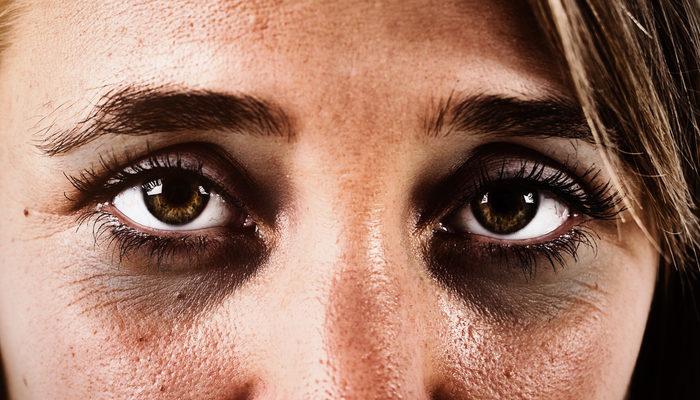 Göz Altı Morlukları Neden Olur, Nasıl Giderilir?