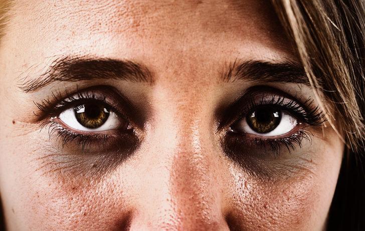 Göz altı morlukları nasıl geçer? İşte en etkili yöntemler