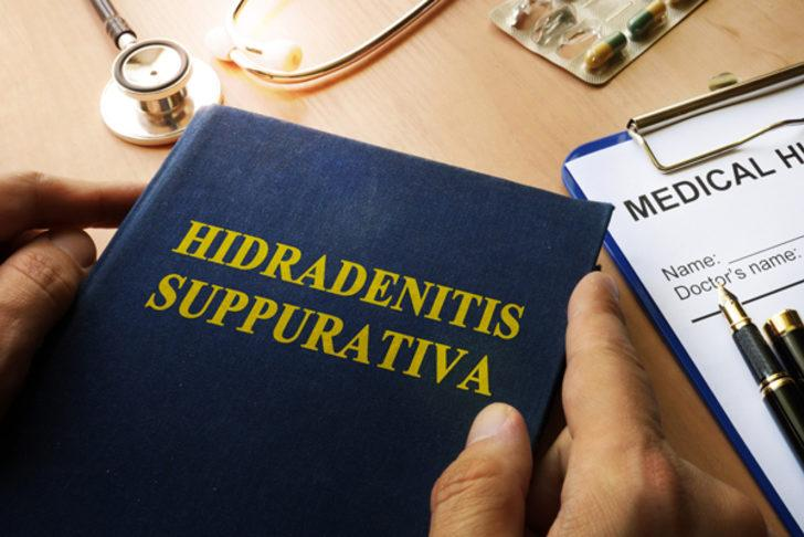 Hidradenitis suppurativa  (HS) nedir? Hidradenitis suppurativa (HS) belirtileri nelerdir? Hidradenitis suppurativa (HS) bulaşıcı mıdır?