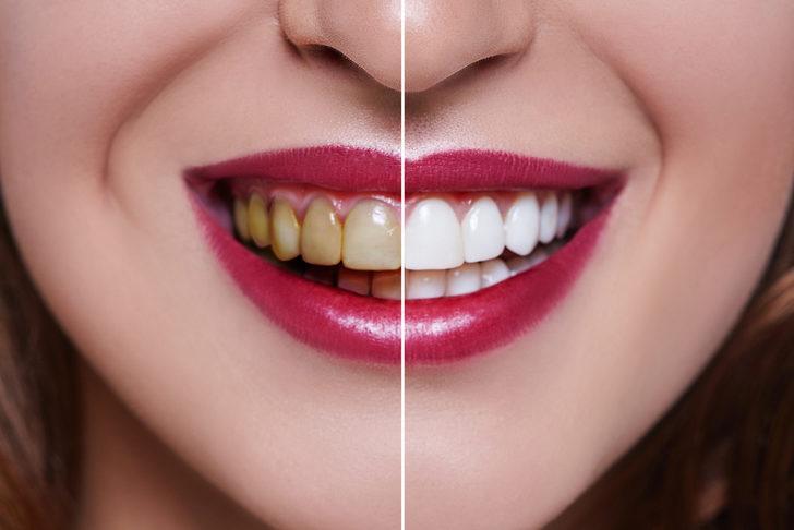 Bu yiyecek ve içecekleri tüketirken dikkat! Dişler için çok zararlı...