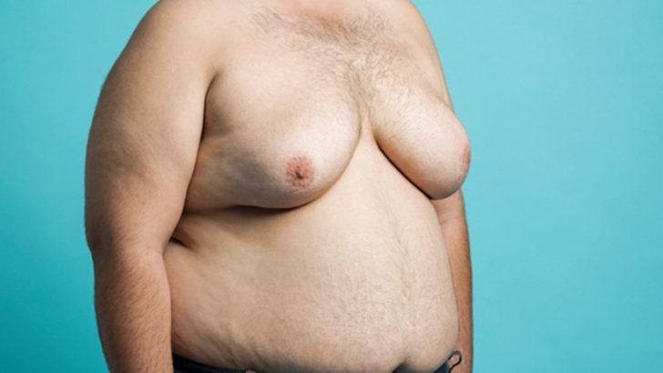 Erkeklerde meme küçültme operasyonu sonrasında iz kalır mı?