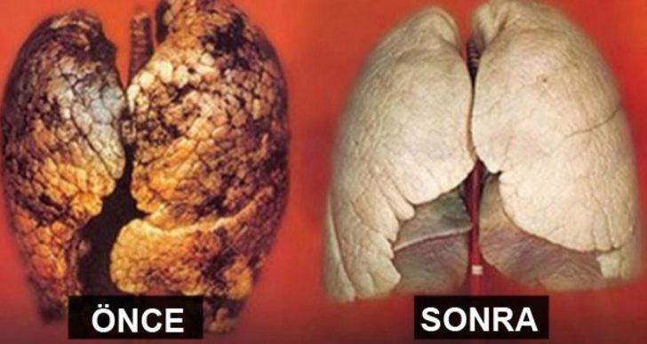 Sigarayı bırakmasanız bile 3 günde ciğerlerinizi temizleyebilirsiniz