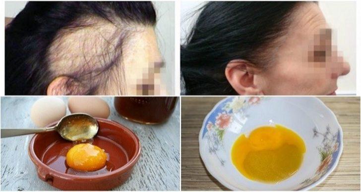 Saç için soğan maskesi: maskeler için yorumlar ve yemek tarifleri