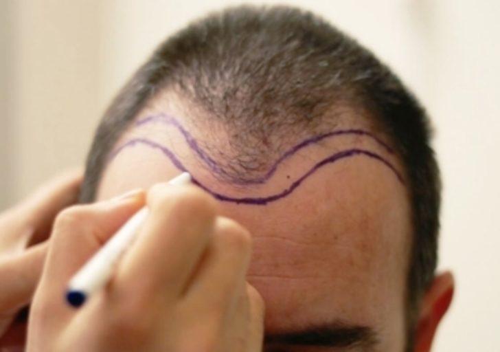 Saç ekimi sonrası pişmanlığa son! Kötü saç ekimi nasıl düzeltilir?