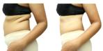 Bir haftada 10 kilo verdiren kardiyolog reçetesi