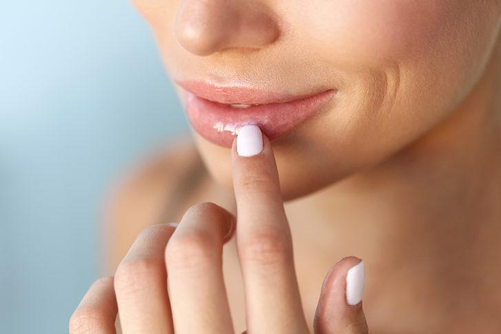 Dudak çatlaması neden olur? Sağlıklı dudaklara bitkisel yollar ile sahip olun!
