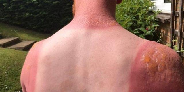 Güneş yanığına ne iyi gelir? Güneş yanığı en hızlı nasıl geçer?