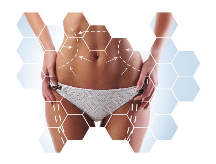 Liposuction adaylarının bilmesi gerekenler