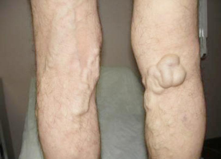 Varis nedir? Varis tedavisinde nelere dikkat edilmeli? Varis çorabı kullanırken nelere dikkat edilmeli?