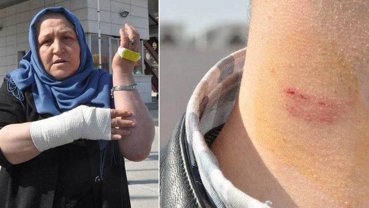 Hastaneyi karıştıran iddia: Doktor hastasını dövdü