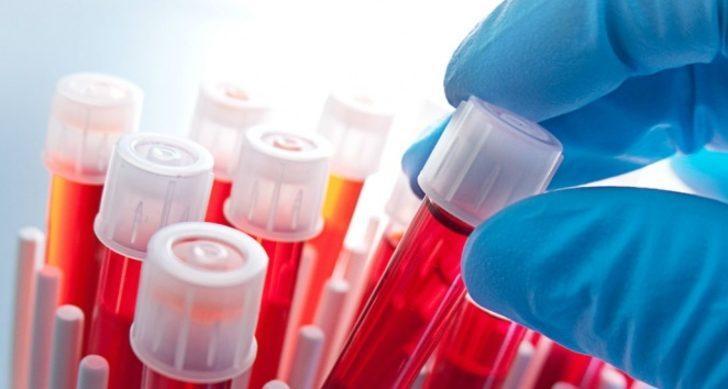 MCHC nedir? MCHC düşüklüğü ve yüksekliği ne anlama gelir? MCHC kan değeri nedir?