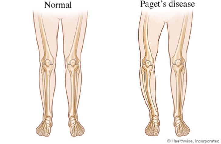 Kemiğin paget hastalığı nedir? Kemiğin paget hastalığı tedavisinde kalsiyum takviyesine dikkat