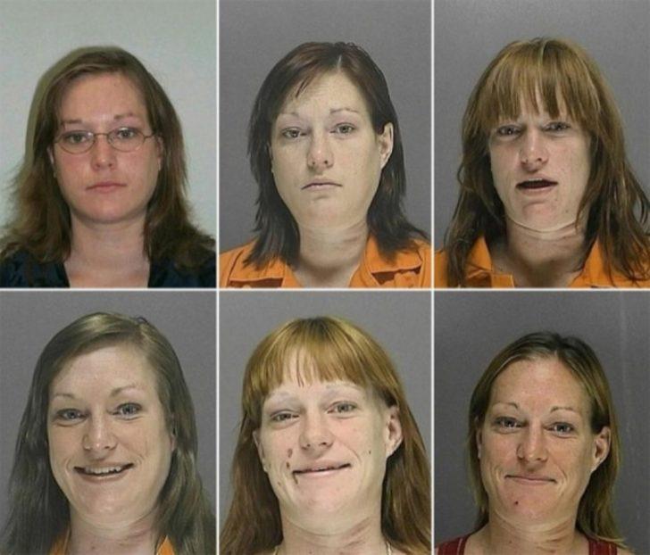 Uyuşturucu Bu Kadını 10 Yıl İçinde Neneme Döndürmüş!