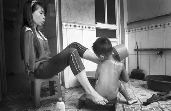 Savaşta Kullanılan Kimyasallar Yüzünden Kolları Olmadan Doğan Vietnamlı Nguyet