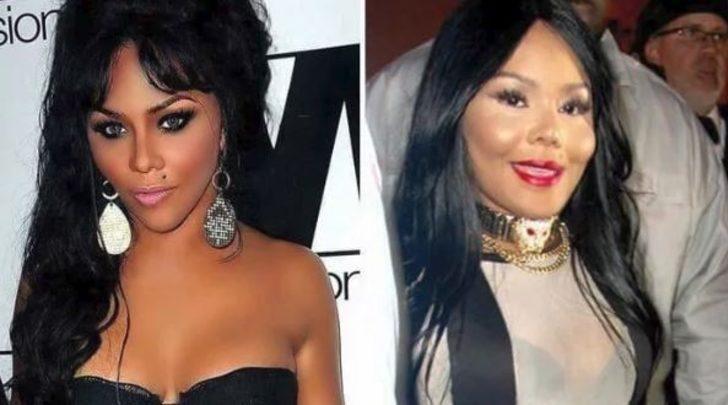 Öncesi ve sonrasıyla estetik kurbanı ünlüler