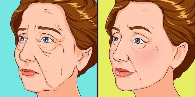 17 milyon kadın botoks yaptırıyor! Ancak, doğal tedavi yollarıyla kırışıklıklardan kurtulabilirsiniz