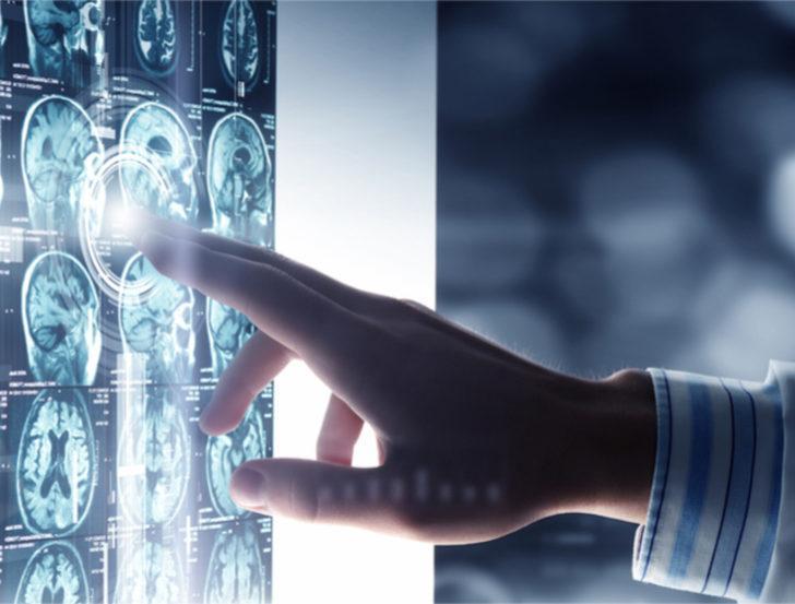 Beyin tümörü tedavisi nasıl yapılır?